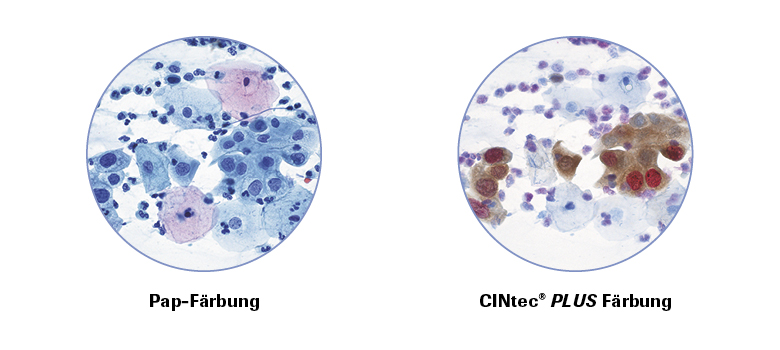 Next Steps after an Abnormal Cervical Gel Papillor Screening Test: Understanding HPV and Pap Test Results
